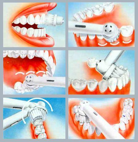 Рейтинг электрической зубной щетки oral
