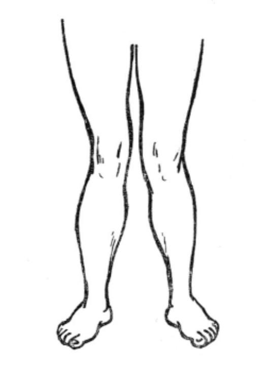 Вальгус и форма ног