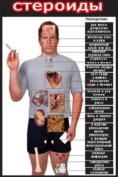 Приём стероидов и его вред