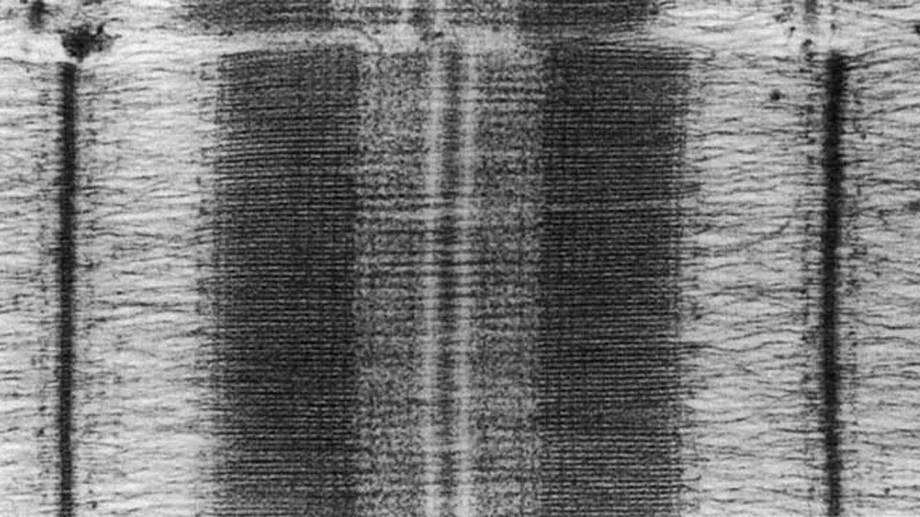 Тест на мышечные волокна