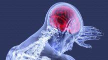 Хронические воспаления, их причины и как от них избавиться
