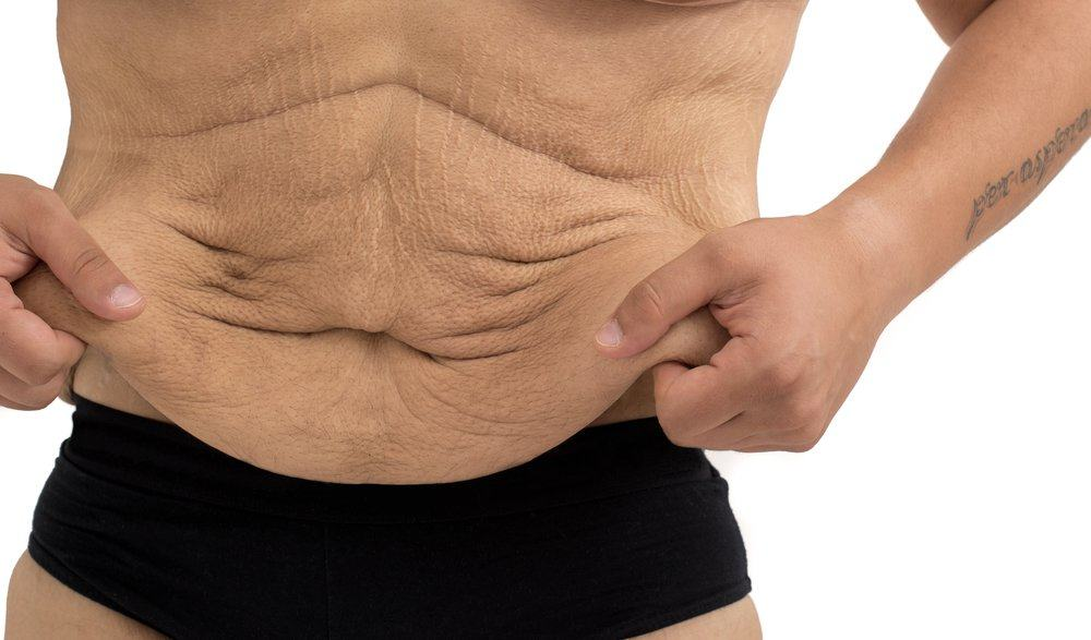 Обвисание кожи после похудения и диеты
